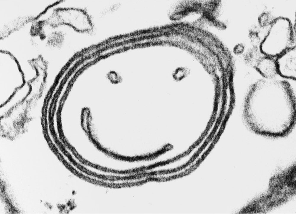 Golgi smiley face